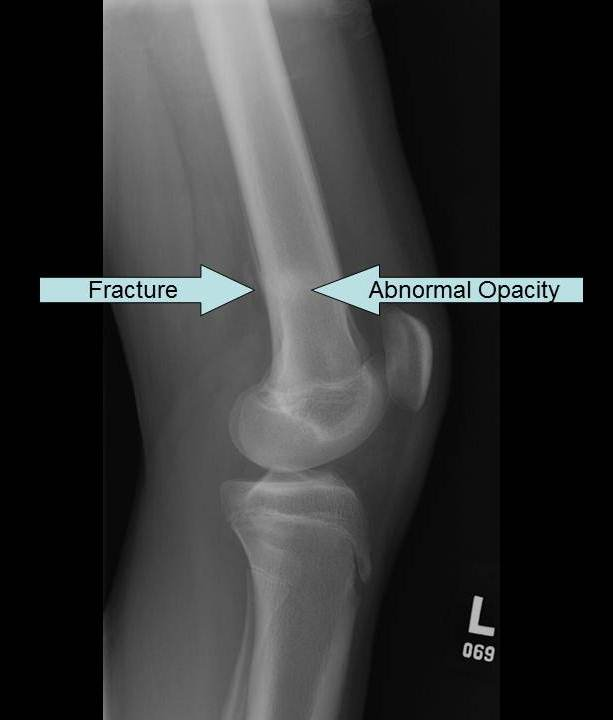 Radiography - Knee Injury and Prevention