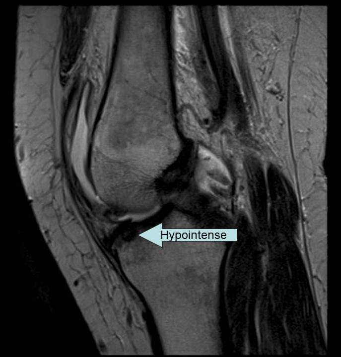 Magnetic Resonance Imaging - Knee Injury and Prevention